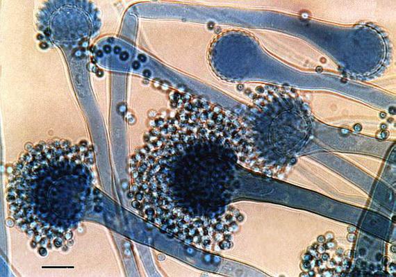 Аспеґіл (Aspergillus fumigatus Fresenius 1863) під мікроскопом. Джерело: http://www.vscht.cz