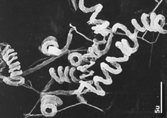 streptomyces thesis Streptomyces tyrosinase: production and practical thesis process is regulated through induction in the the streptomyces michiganensis tyrosinase is in-.