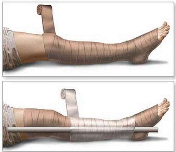 Зафіксуйте ногу шиною і доправте постраждалого до шпиталю